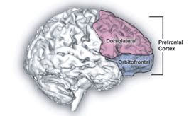 Frontaal syndroom - Wikipedia